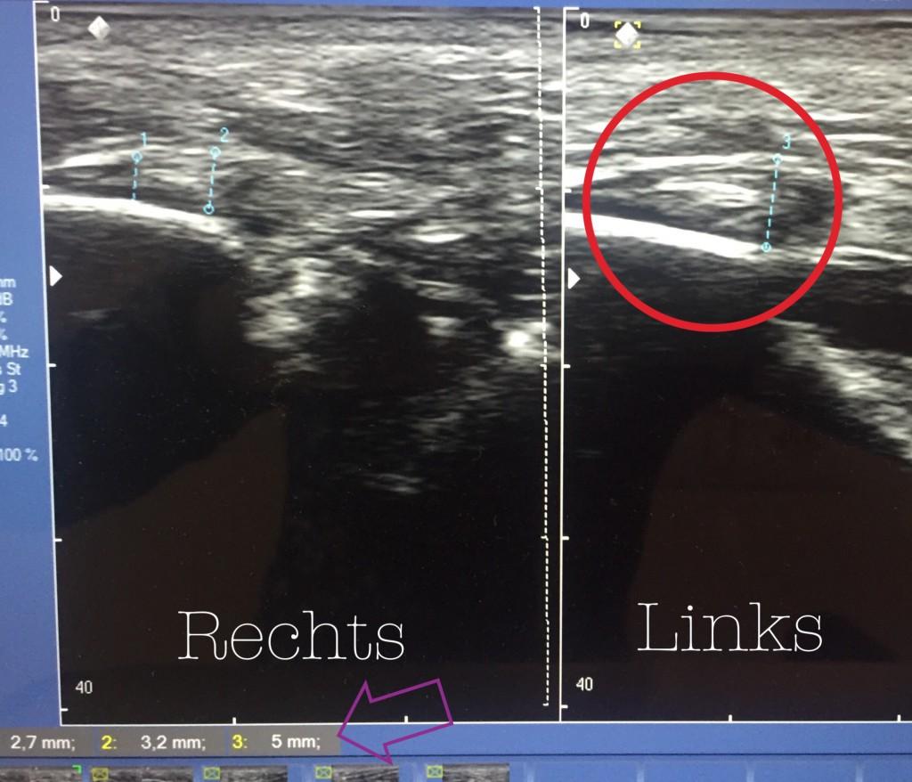 Op deze afbeelding van de echo zie je een plaatje van mijn rechter en linkervoet. Rechts is 'normaal' en heeft de pees een dikte van 3,2mm. Links is deze 5mm. Dat is ongeveer 1mm dikker dan dat normaal is.